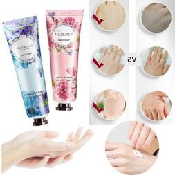 5 Types Hand Cream Dry Damaged Skin Hand Nail Lotion Skin Ca