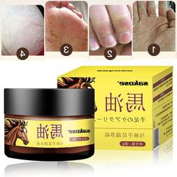Antifreeze <font><b>Cream</b></font> Treatment Dry Skin Heel