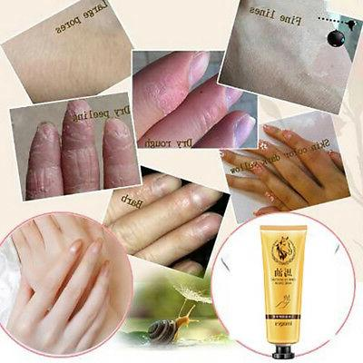 30g Moisturizing Hand Cream Gel Age Whitening Hot