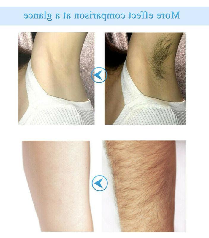 Body Hair Removal Cream Unisex Loss Depilatory Remove Spray